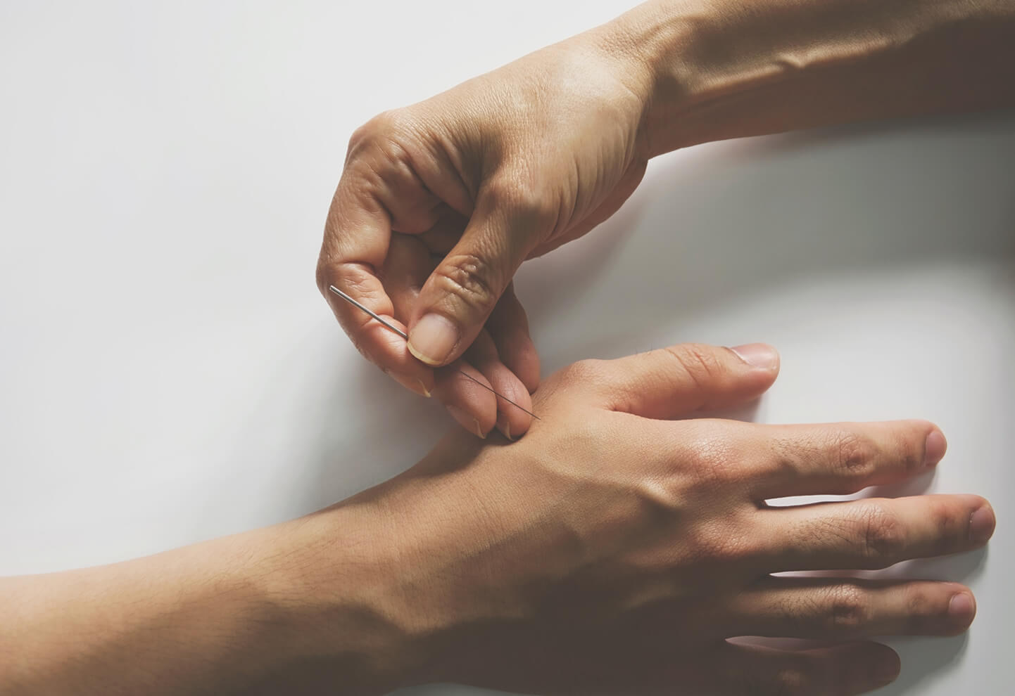 How does acupuncture help treat joint pain? - Healthy ask